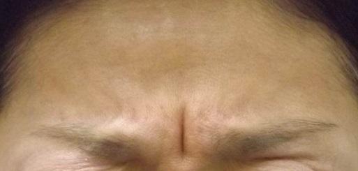 眉間のしわ取りは美容外科【ボトックス】眉間の筋肉の盛り上がりにも効果ある?