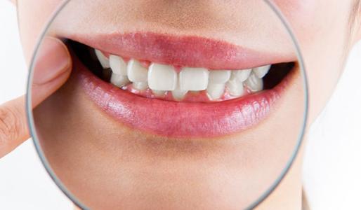 歯の黄ばみをとるホワイトニングの値段はいくら?1280円でケアできる方法って何?